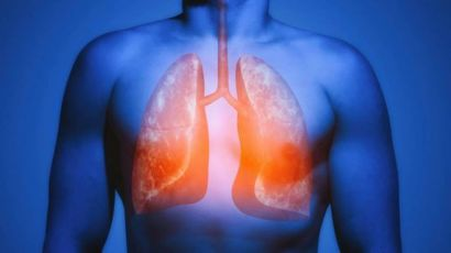 Covid-19: Os cuidados que o paciente deve ter mesmo após se 'curar'
